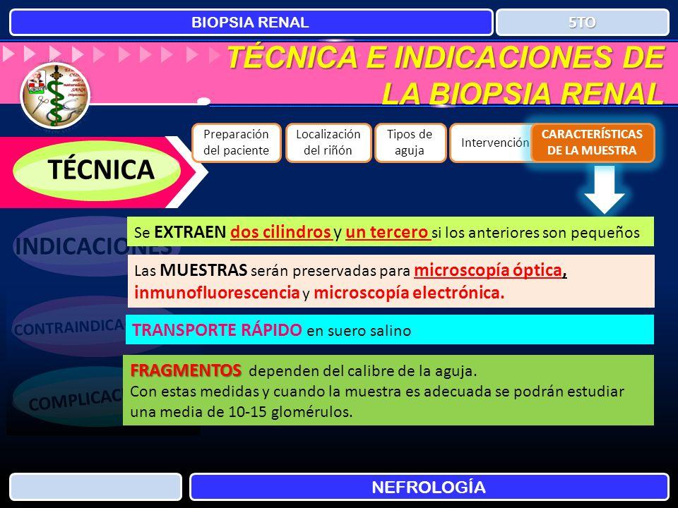 TÉCNICA E INDICACIONES DE LA BIOPSIA RENAL BIOPSIA RENAL NEFROLOGÍA 5TO TÉCNICA INDICACIONES CONTRAINDICACIONES COMPLICACIONES Preparación del pacient