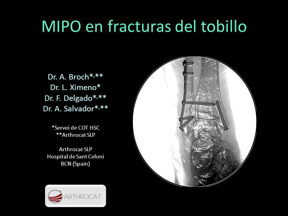 MIPO en fracturas del tobillo Dr. A. Broch*, ** Dr. L. Ximeno* Dr. F. Delgado*, ** Dr. A. Salvador*, ** *Servei de COT HSC **Arthrocat SLP Arthrocat S