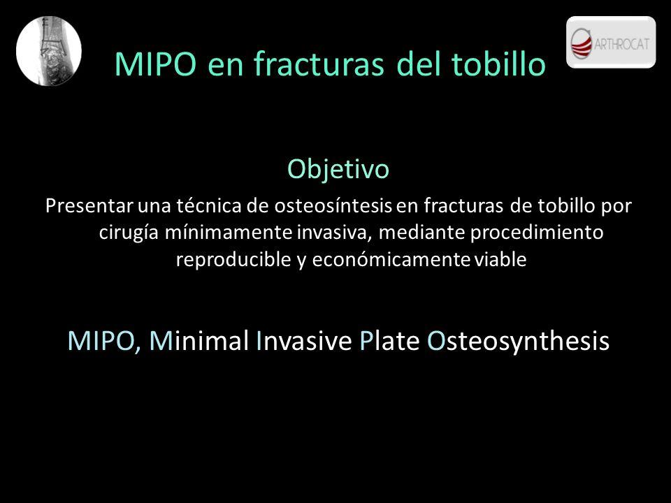 MIPO en fracturas del tobillo Objetivo Presentar una técnica de osteosíntesis en fracturas de tobillo por cirugía mínimamente invasiva, mediante proce