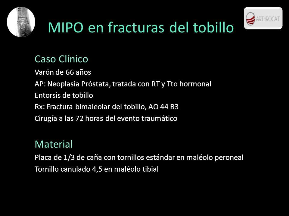 MIPO en fracturas del tobillo Caso Clínico Varón de 66 años AP: Neoplasia Próstata, tratada con RT y Tto hormonal Entorsis de tobillo Rx: Fractura bim
