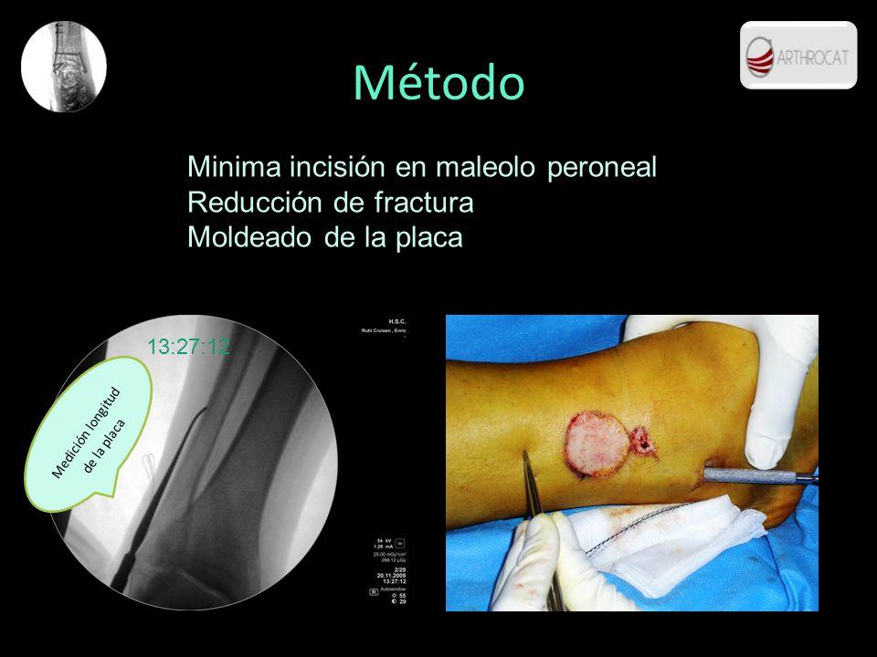 Método Minima incisión en maleolo peroneal Reducción de fractura Moldeado de la placa 13:27:12 Medición longitud de la placa
