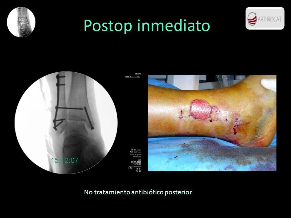 Postop inmediato 15:12:07 No tratamiento antibiótico posterior