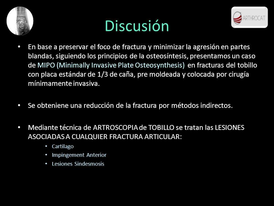 Discusión En base a preservar el foco de fractura y minimizar la agresión en partes blandas, siguiendo los principios de la osteosíntesis, presentamos