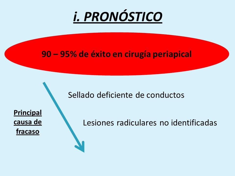 i. PRONÓSTICO Sellado deficiente de conductos Lesiones radiculares no identificadas 90 – 95% de éxito en cirugía periapical Principal causa de fracaso