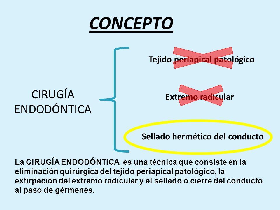 CONCEPTO CIRUGÍA ENDODÓNTICA Tejido periapical patológico Extremo radicular Sellado hermético del conducto La CIRUGÍA ENDODÓNTICA es una técnica que c