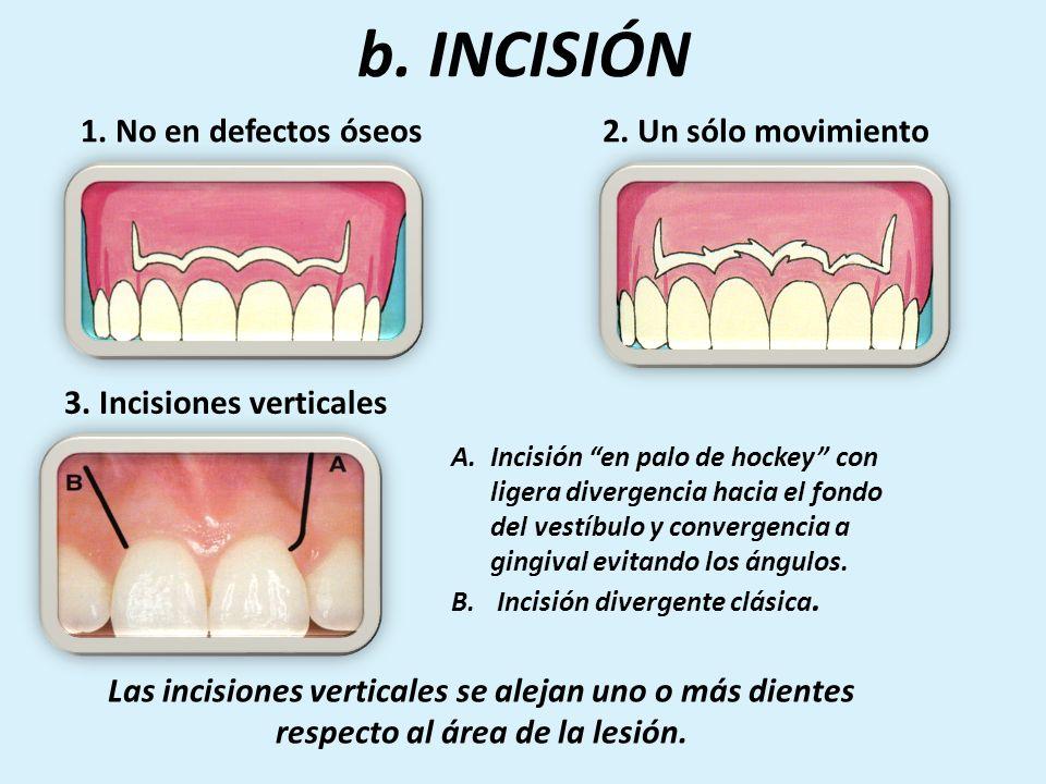 Colgajos Ideal en cirugía oral TIPOS - Intrasulcular - Mucogingival o festoneado Colgajo de elección en cirugía endodóntica COLGAJO A ESPESOR TOTAL