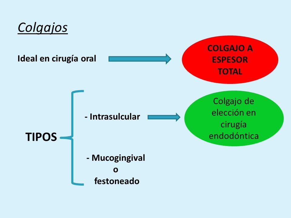 g.LIMPIEZA, IRRIGACIÓN Y REMODELADO ÓSEO -Limpieza del campo operatorio.
