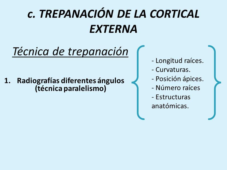 Técnica de trepanación 1.Radiografías diferentes ángulos (técnica paralelismo) - Longitud raíces. - Curvaturas. - Posición ápices. - Número raíces - E