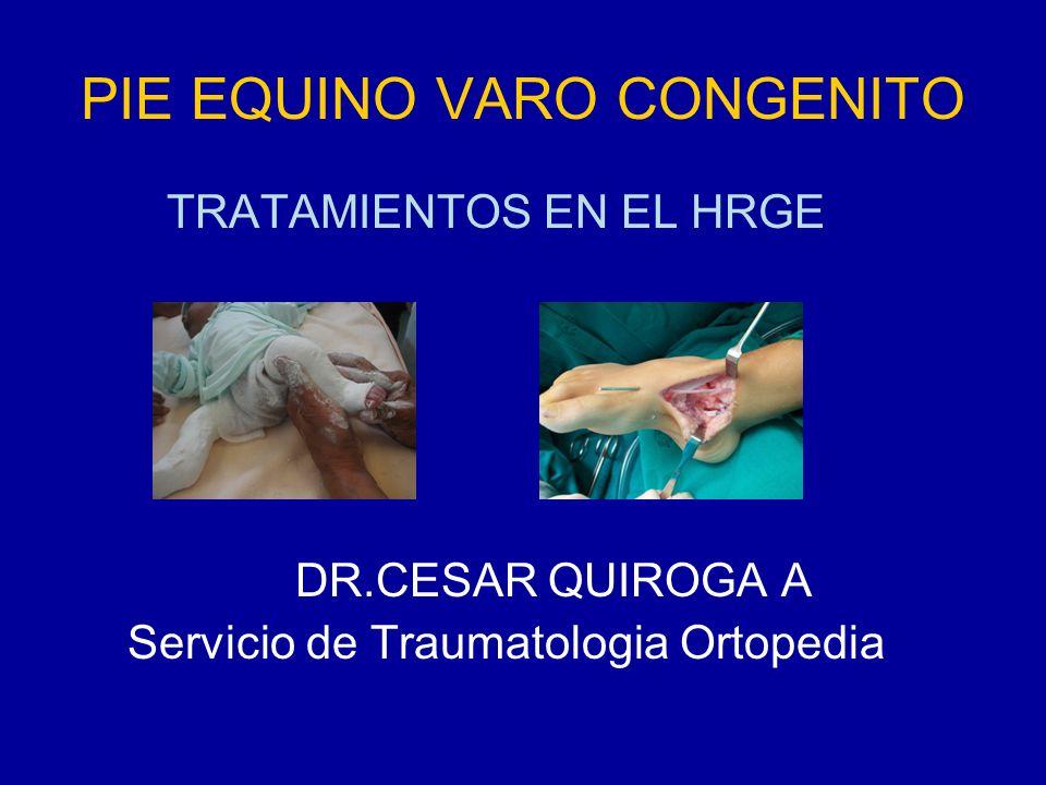 PIE EQUINO VARO CONGENITO TRATAMIENTOS EN EL HRGE DR.CESAR QUIROGA A Servicio de Traumatologia Ortopedia