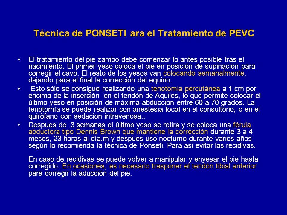 PEVC con técnica de Ponseti.2010 -2011 Dr.C.QuirogaA.