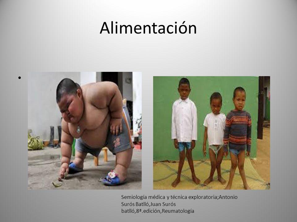 Alimentación La alimentación defectuosa y la falta de sol favorecen la aparición del raquitismo en la infancia y de la osteomalacia en el adulto. Semi