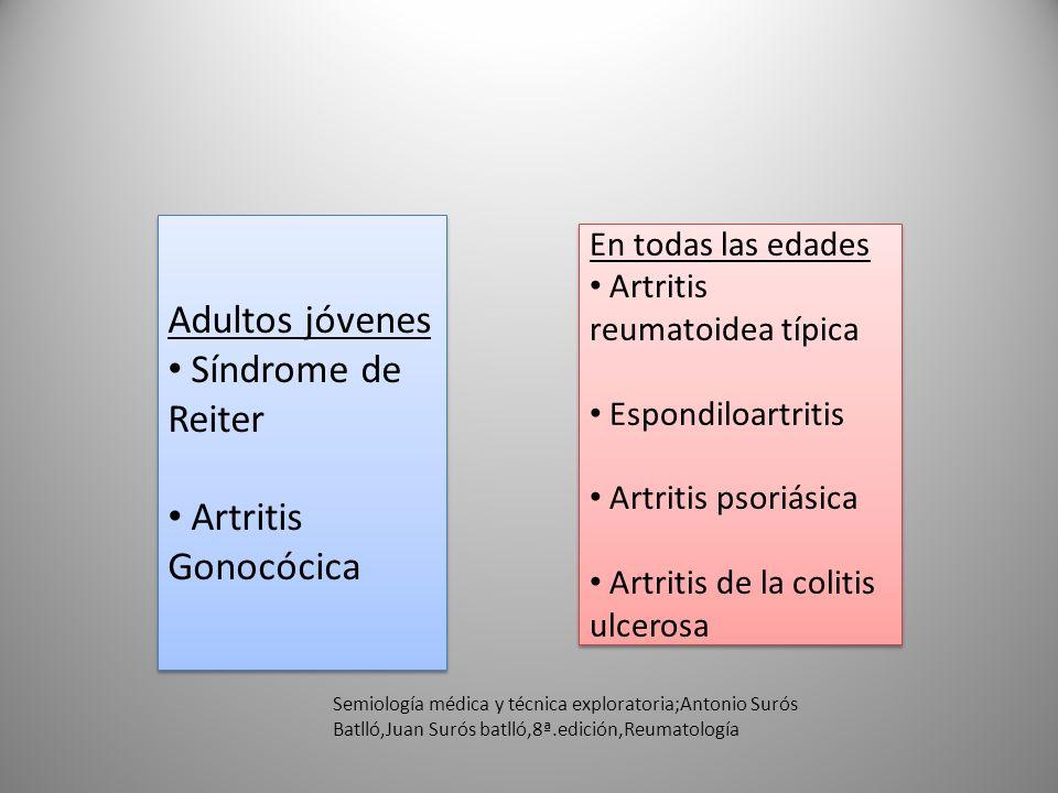 Adultos jóvenes Síndrome de Reiter Artritis Gonocócica Adultos jóvenes Síndrome de Reiter Artritis Gonocócica En todas las edades Artritis reumatoidea