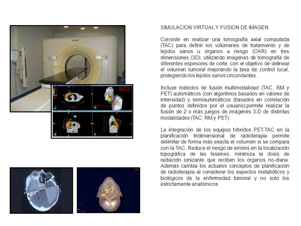 SIMULACION VIRTUAL Y FUSION DE IMAGEN Consiste en realizar una tomografía axial computada (TAC) para definir los volúmenes de tratamiento y de tejidos sanos u órganos a riesgo (OAR) en tres dimensiones (3D), utilizando imágenes de tomografía de diferentes espesores de corte, con el objetivo de delinear el volumen tumoral mejorando la tasa de control local, protegiendo los tejidos sanos circundantes.