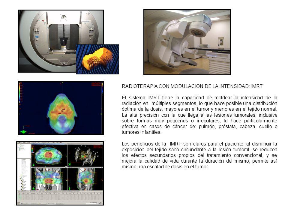 RADIOTERAPIA CON MODULACION DE LA INTENSIDAD: IMRT El sistema IMRT tiene la capacidad de moldear la intensidad de la radiación en múltiples segmentos,