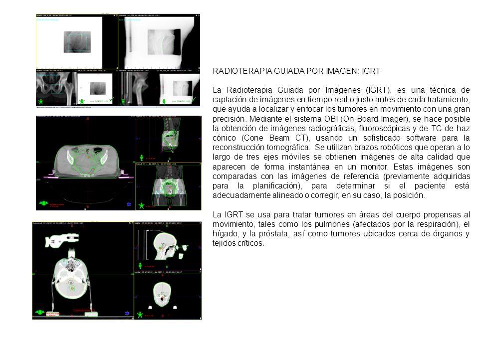 RADIOTERAPIA GUIADA POR IMAGEN: IGRT La Radioterapia Guiada por Imágenes (IGRT), es una técnica de captación de imágenes en tiempo real o justo antes