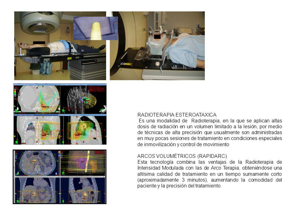 RADIOTERAPIA ESTEROATAXICA Es una modalidad de Radioterapia, en la que se aplican altas dosis de radiación en un volumen limitado a la lesión, por medio de técnicas de alta precisión que usualmente son administradas en muy pocas sesiones de tratamiento en condiciones especiales de inmovilización y control de movimiento ARCOS VOLUMÉTRICOS (RAPIDARC) Esta tecnología combina las ventajas de la Radioterapia de Intensidad Modulada con las de Arco Terapia, obteniéndose una altísima calidad de tratamiento en un tiempo sumamente corto (aproximadamente 3 minutos), aumentando la comodidad del paciente y la precisión del tratamiento.