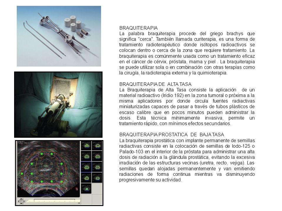 RADIOTERAPIA INTRAOPERATORIA La radioterapia intraoperatoria (RIO) es una técnica que permite la administración de una elevada dosis de radiación ionizante en el lecho quirúrgico durante la intervención con el objetivo de mejorar el control local de la enfermedad y disminuir toxicidad por menor irradiación de tejidos sanos.