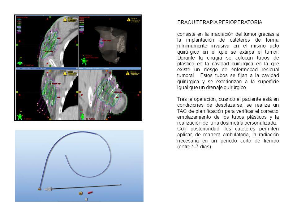BRAQUITERAPIA OCULAR Consiste en la colocación de una fuente radioactiva: rutenio 106 o iodo 125 en contacto con la superficie del globo ocular.