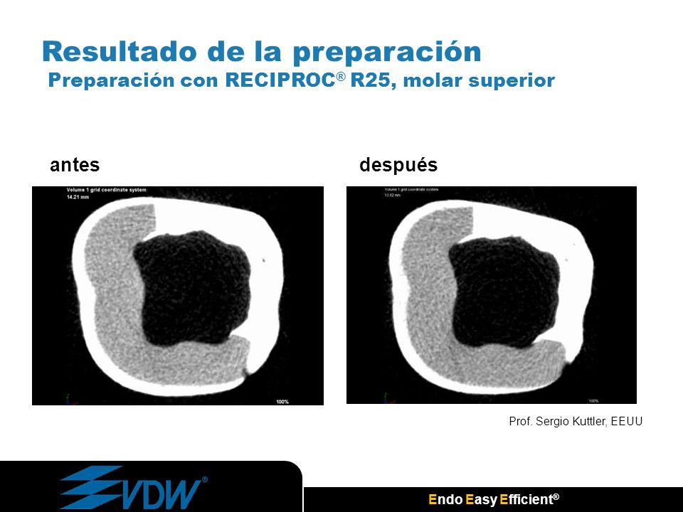 Endo Easy Efficient ® Prof. Sergio Kuttler, EEUU antesdespués Resultado de la preparación Preparación con RECIPROC ® R25, molar superior