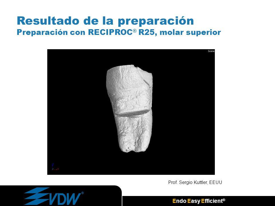 Endo Easy Efficient ® Resultado de la preparación Preparación con RECIPROC ® R25, molar superior Prof. Sergio Kuttler, EEUU