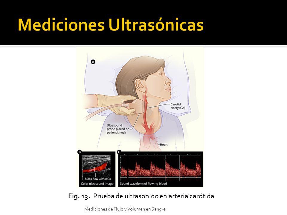 Fig. 13. Prueba de ultrasonido en arteria carótida Mediciones de Flujo y Volumen en Sangre