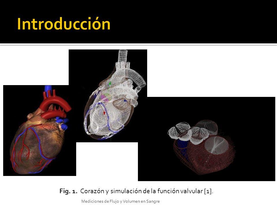 Fig. 1. Corazón y simulación de la función valvular [1]. Mediciones de Flujo y Volumen en Sangre