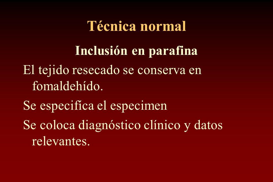 Técnica normal Inclusión en parafina El tejido resecado se conserva en fomaldehído. Se especifíca el especimen Se coloca diagnóstico clínico y datos r