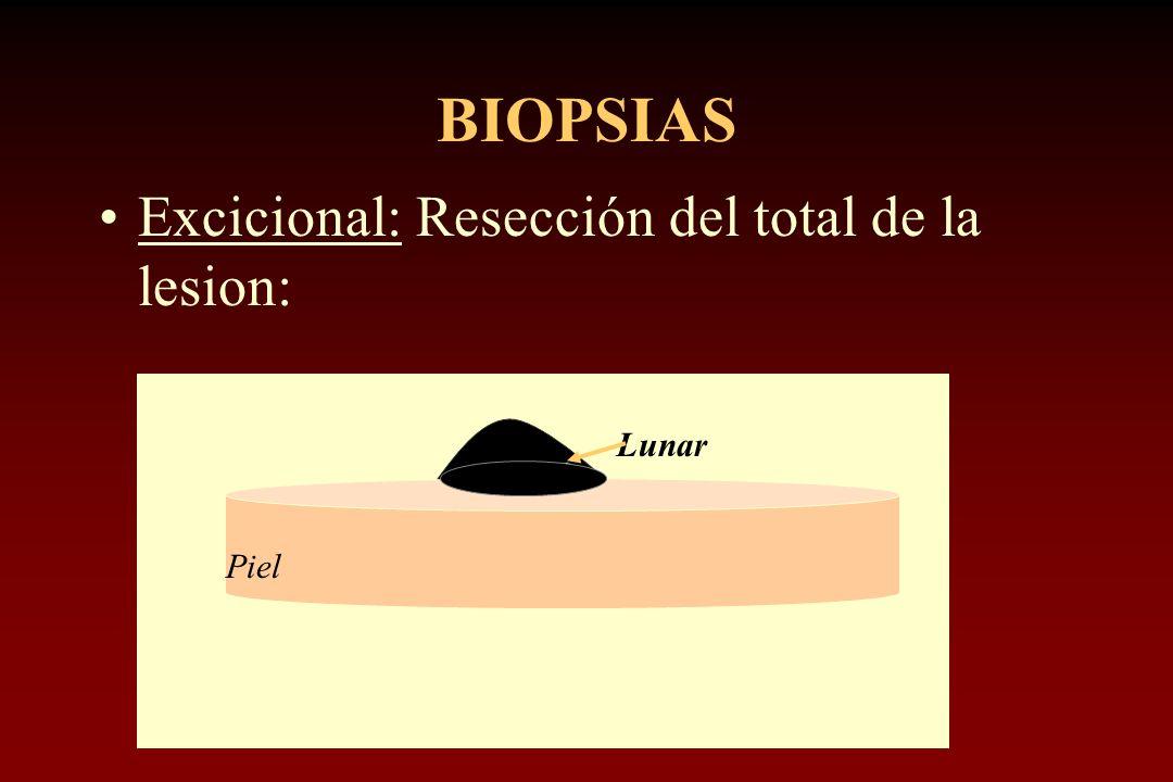 BIOPSIAS Excicional: Resección del total de la lesion: Piel Lunar
