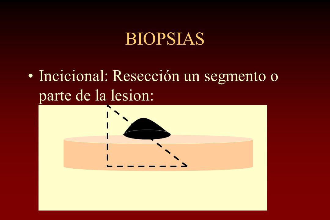 BIOPSIAS Incicional: Resección un segmento o parte de la lesion: