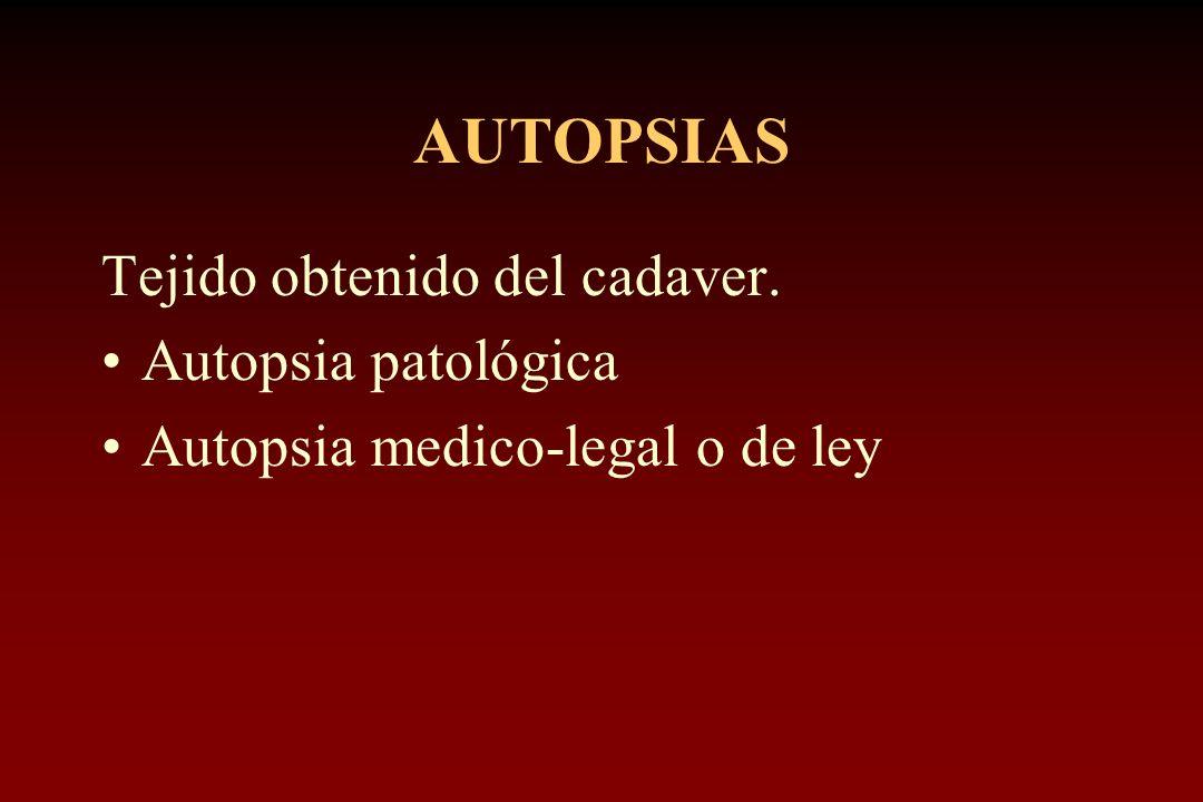 AUTOPSIAS Tejido obtenido del cadaver. Autopsia patológica Autopsia medico-legal o de ley