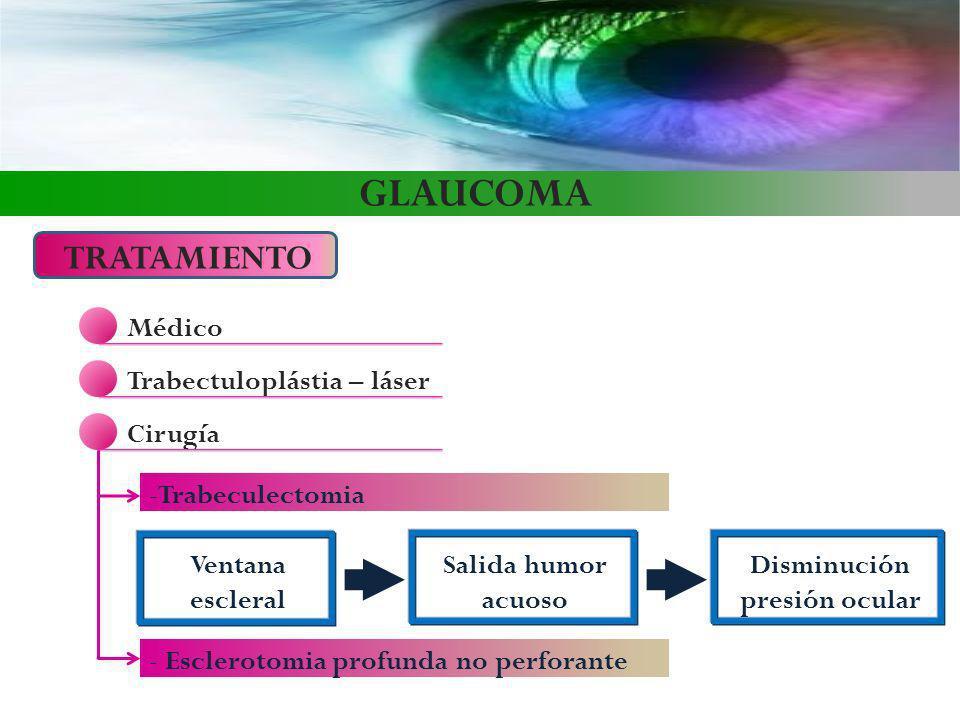 GLAUCOMA Médico Trabectuloplástia – láser Cirugía Ventana escleral Salida humor acuoso Disminución presión ocular -Trabeculectomia - Esclerotomia prof