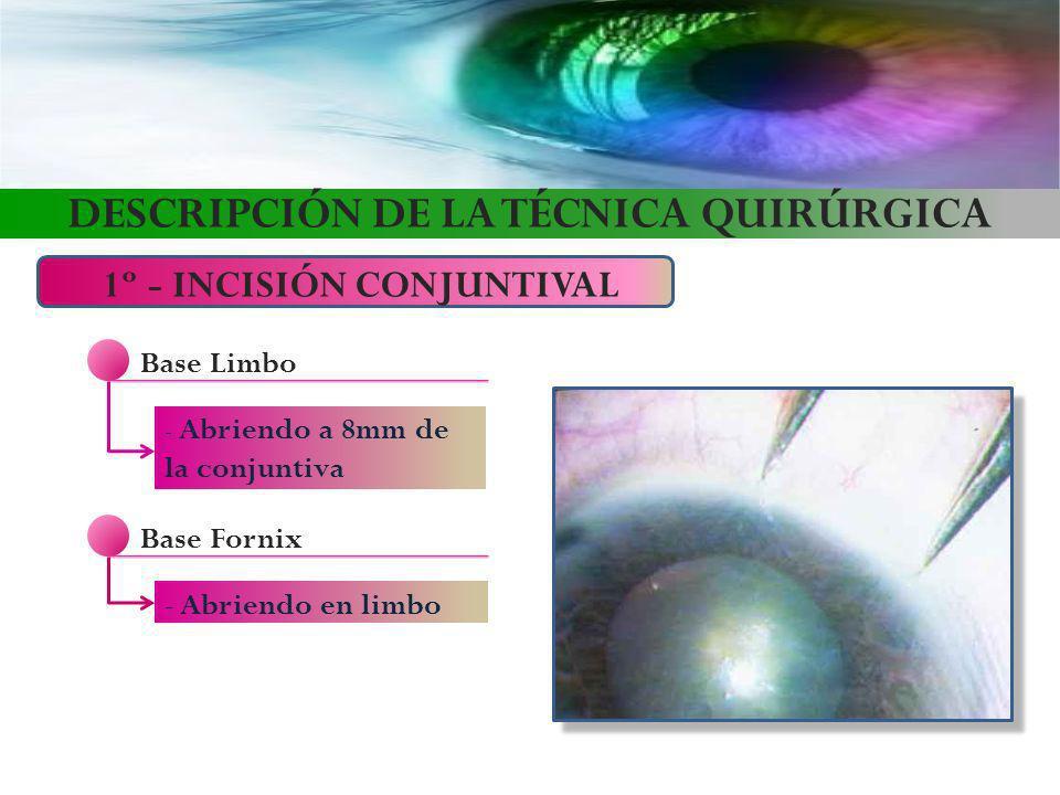 DESCRIPCIÓN DE LA TÉCNICA QUIRÚRGICA 1º - INCISIÓN CONJUNTIVAL Base Limbo - Abriendo a 8mm de la conjuntiva Base Fornix - Abriendo en limbo