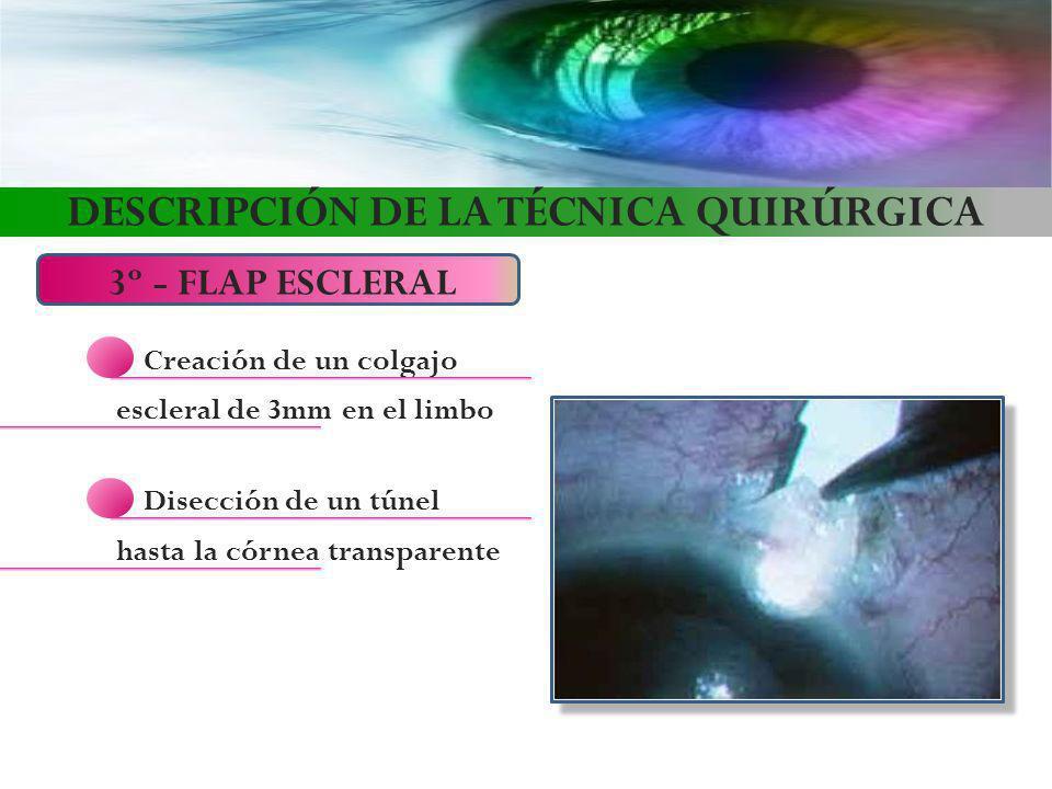 DESCRIPCIÓN DE LA TÉCNICA QUIRÚRGICA 3º - FLAP ESCLERAL Creación de un colgajo escleral de 3mm en el limbo Disección de un túnel hasta la córnea trans