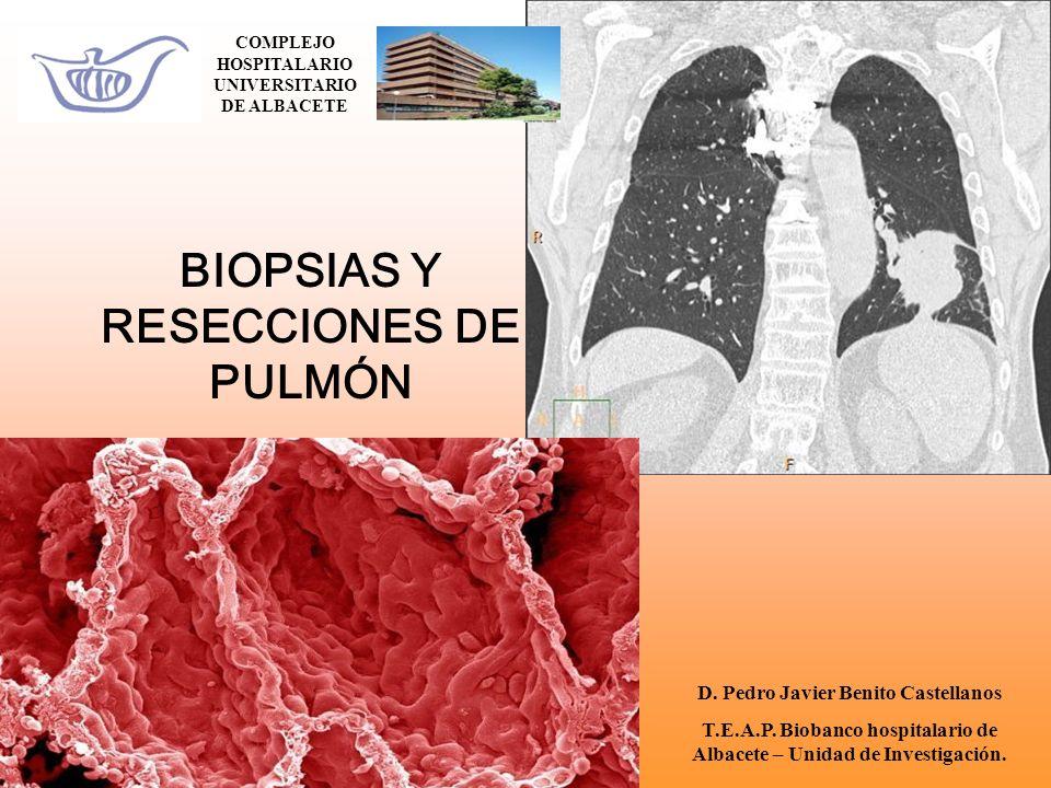 BIOPSIAS Y RESECCIONES DE PULMÓN COMPLEJO HOSPITALARIO UNIVERSITARIO DE ALBACETE D. Pedro Javier Benito Castellanos T.E.A.P. Biobanco hospitalario de