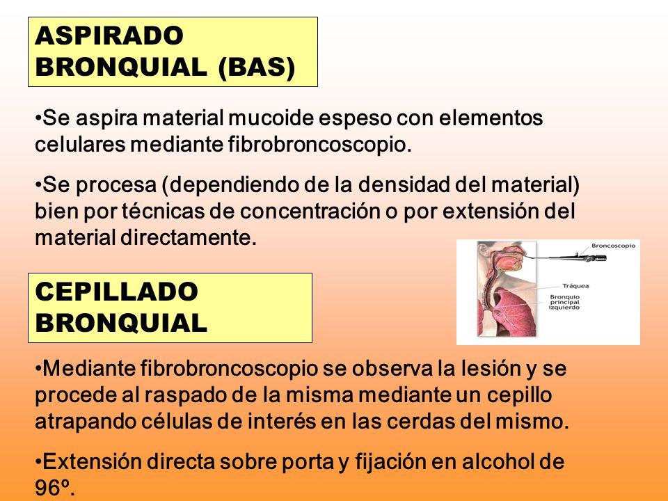 ASPIRADO BRONQUIAL (BAS) Se aspira material mucoide espeso con elementos celulares mediante fibrobroncoscopio. Se procesa (dependiendo de la densidad