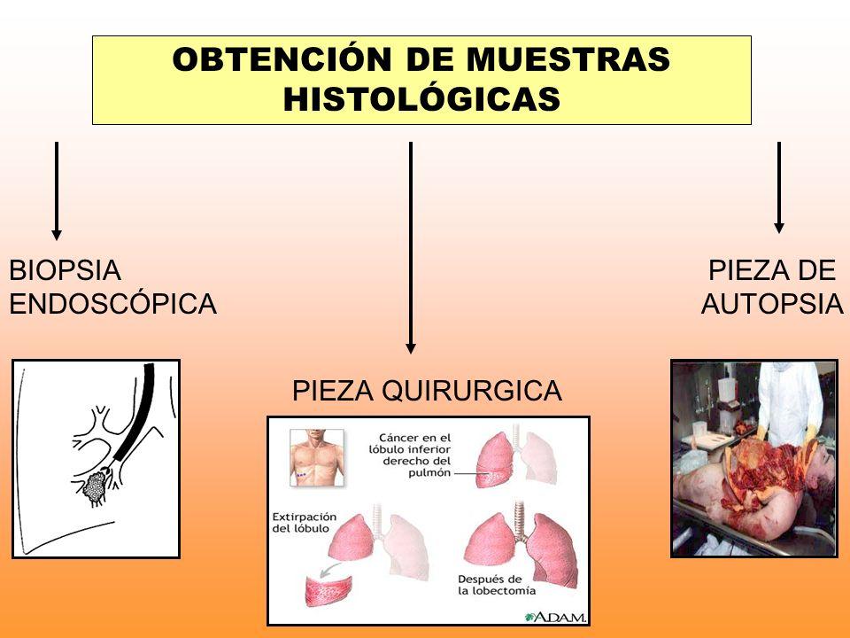 OBTENCIÓN DE MUESTRAS HISTOLÓGICAS BIOPSIA ENDOSCÓPICA PIEZA QUIRURGICA PIEZA DE AUTOPSIA