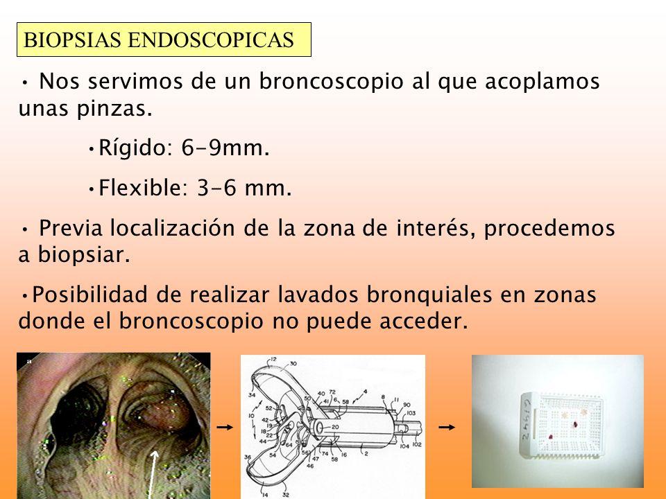 BIOPSIAS ENDOSCOPICAS Nos servimos de un broncoscopio al que acoplamos unas pinzas. Rígido: 6-9mm. Flexible: 3-6 mm. Previa localización de la zona de