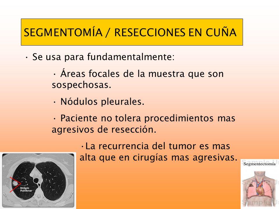SEGMENTOMÍA / RESECCIONES EN CUÑA Se usa para fundamentalmente: Áreas focales de la muestra que son sospechosas. Nódulos pleurales. Paciente no tolera