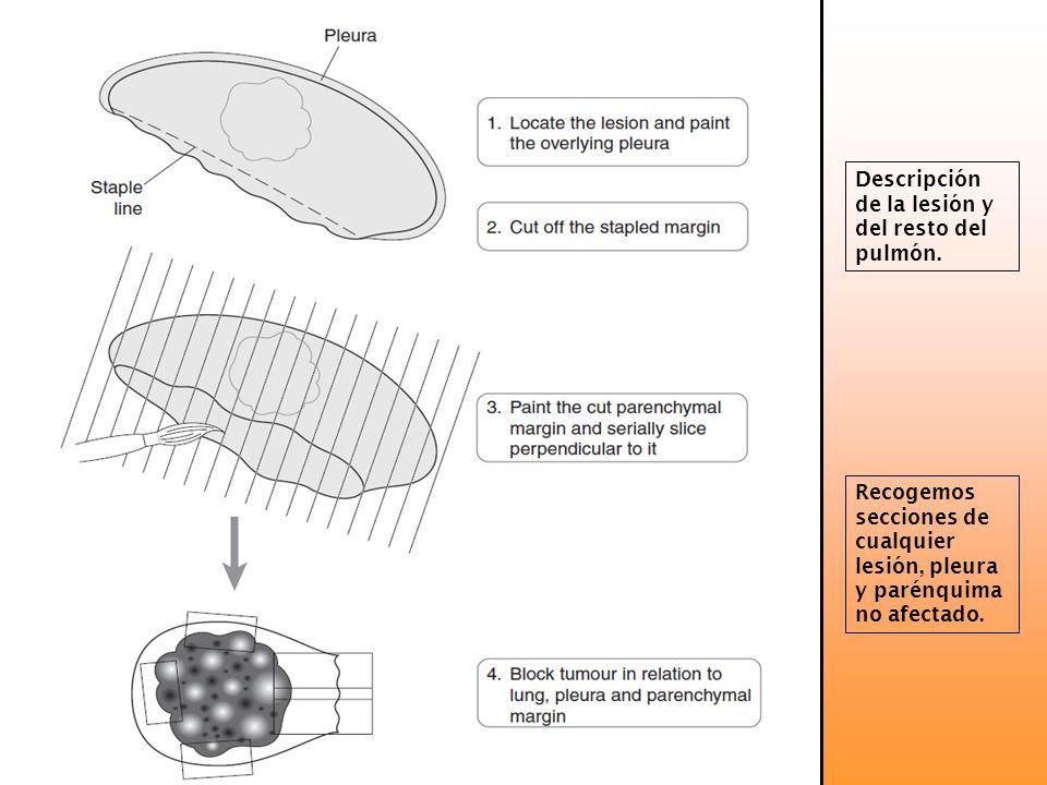 Descripción de la lesión y del resto del pulmón. Recogemos secciones de cualquier lesión, pleura y parénquima no afectado.