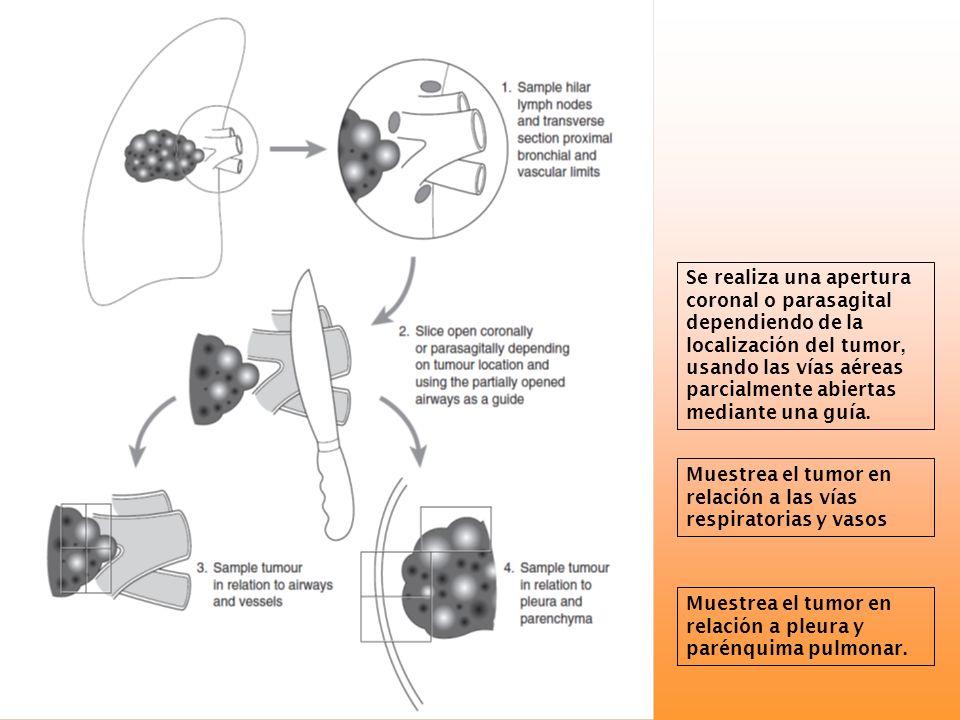 Se realiza una apertura coronal o parasagital dependiendo de la localización del tumor, usando las vías aéreas parcialmente abiertas mediante una guía
