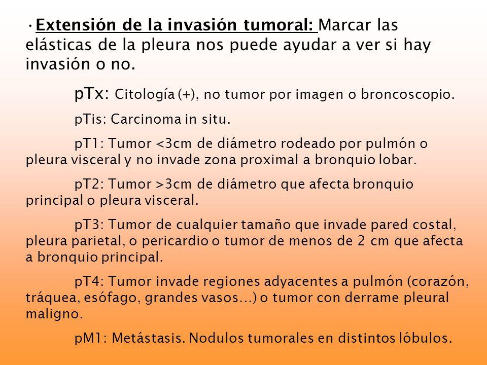 Extensión de la invasión tumoral: Marcar las elásticas de la pleura nos puede ayudar a ver si hay invasión o no. pTx: Citología (+), no tumor por imag