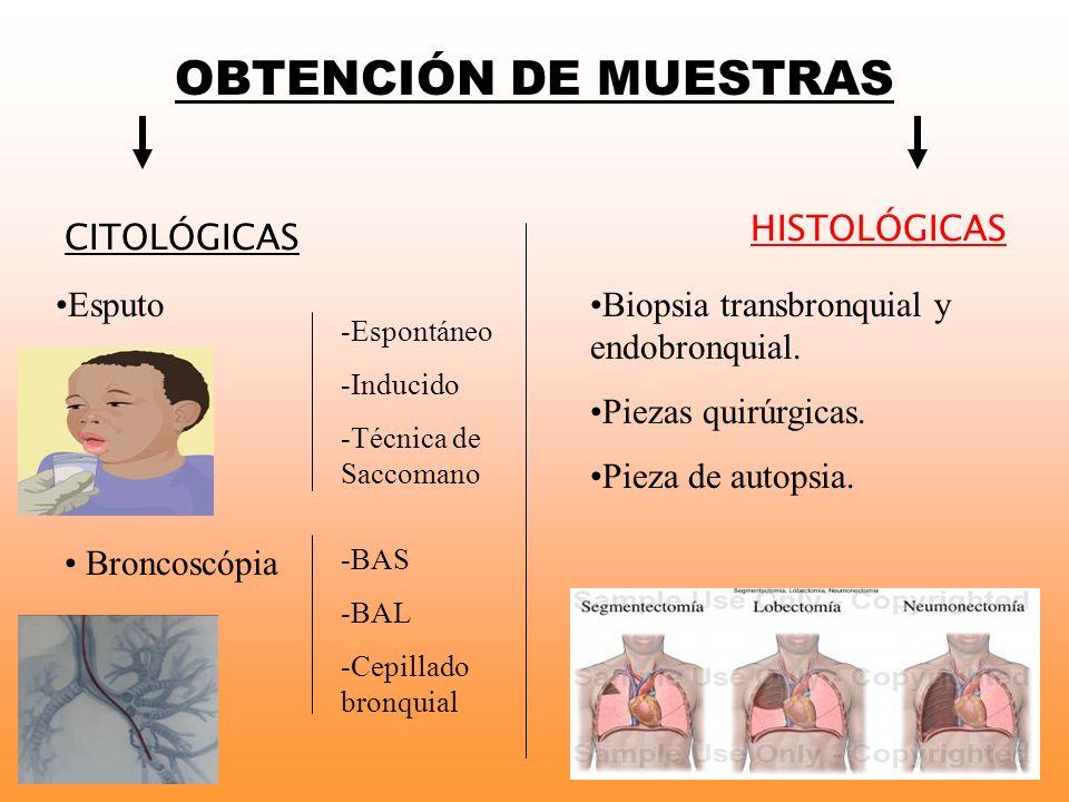 OBTENCIÓN DE MUESTRAS CITOLÓGICAS HISTOLÓGICAS Esputo -Espontáneo -Inducido -Técnica de Saccomano Broncoscópia -BAS -BAL -Cepillado bronquial Biopsia
