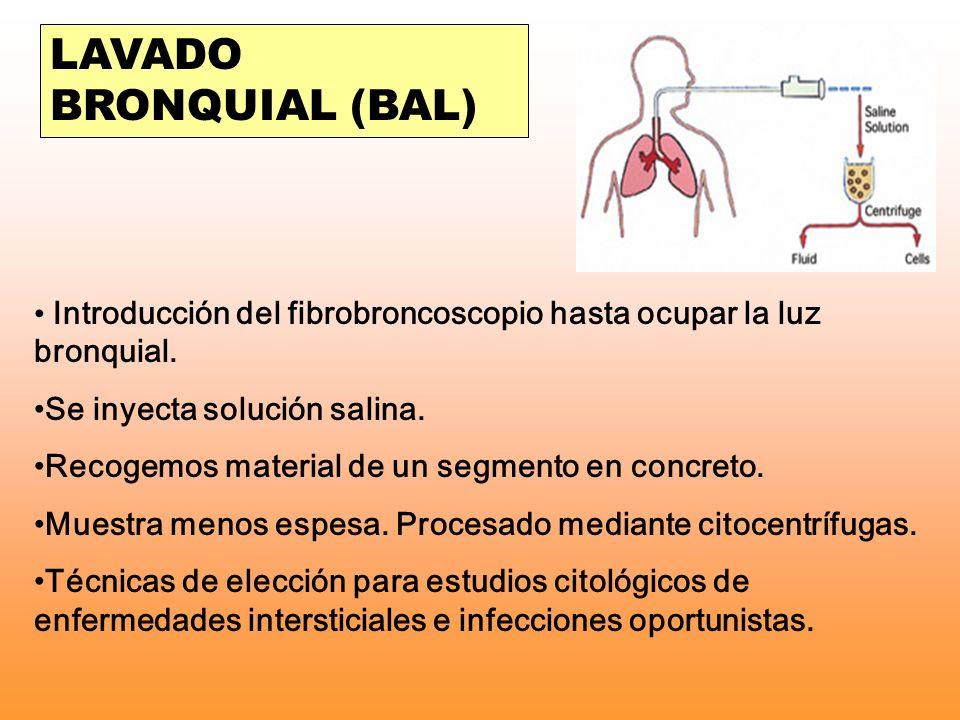 LAVADO BRONQUIAL (BAL) Introducción del fibrobroncoscopio hasta ocupar la luz bronquial. Se inyecta solución salina. Recogemos material de un segmento