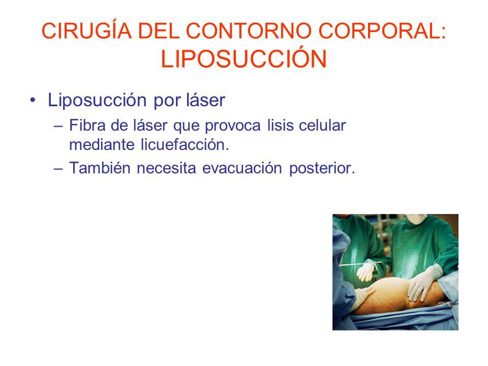 CIRUGÍA DEL CONTORNO CORPORAL: LIPOSUCCIÓN Liposucción por láser –Fibra de láser que provoca lisis celular mediante licuefacción. –También necesita ev
