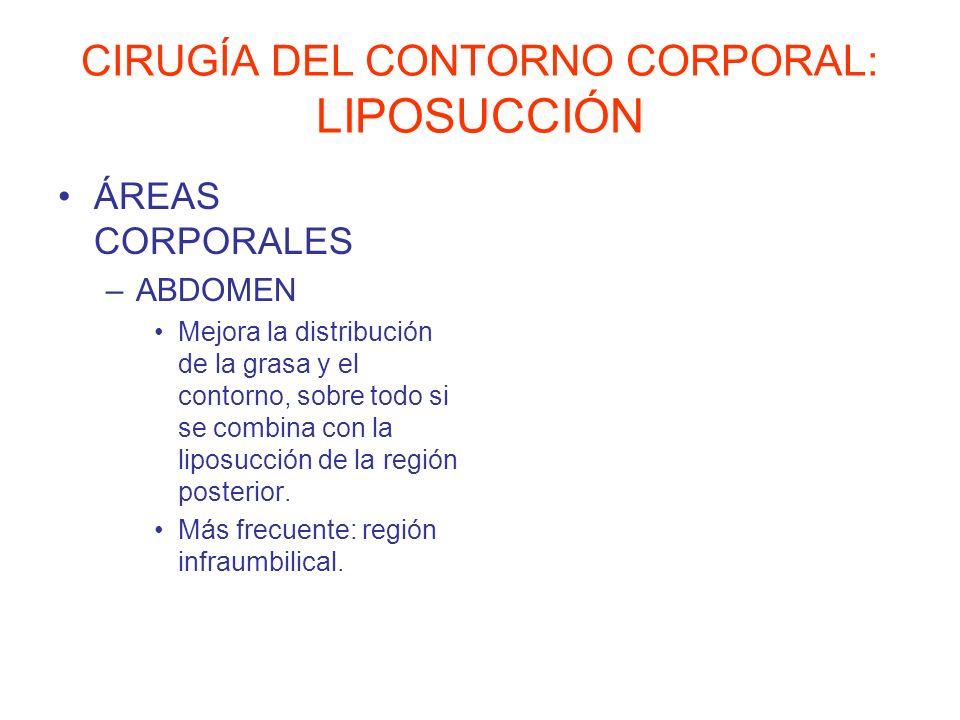 CIRUGÍA DEL CONTORNO CORPORAL: LIPOSUCCIÓN ÁREAS CORPORALES –ABDOMEN Mejora la distribución de la grasa y el contorno, sobre todo si se combina con la