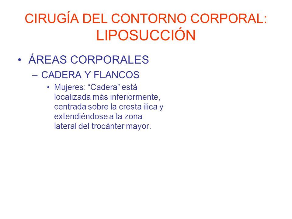 CIRUGÍA DEL CONTORNO CORPORAL: LIPOSUCCIÓN ÁREAS CORPORALES –CADERA Y FLANCOS Mujeres: Cadera está localizada más inferiormente, centrada sobre la cre