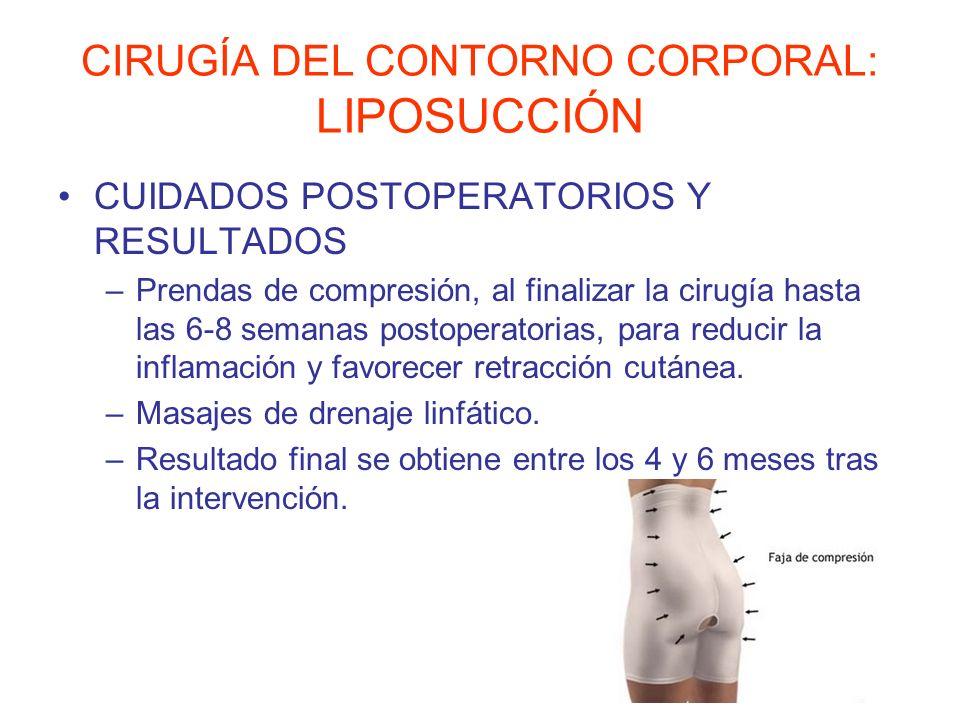 CIRUGÍA DEL CONTORNO CORPORAL: LIPOSUCCIÓN CUIDADOS POSTOPERATORIOS Y RESULTADOS –Prendas de compresión, al finalizar la cirugía hasta las 6-8 semanas