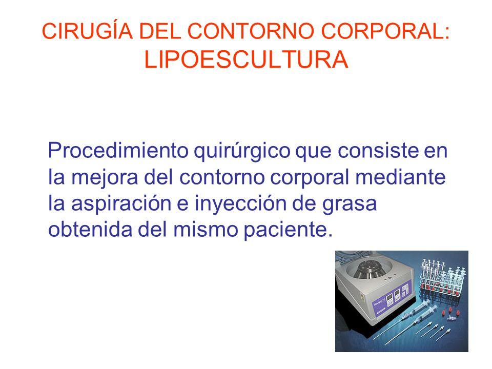 CIRUGÍA DEL CONTORNO CORPORAL: LIPOESCULTURA Procedimiento quirúrgico que consiste en la mejora del contorno corporal mediante la aspiración e inyecci