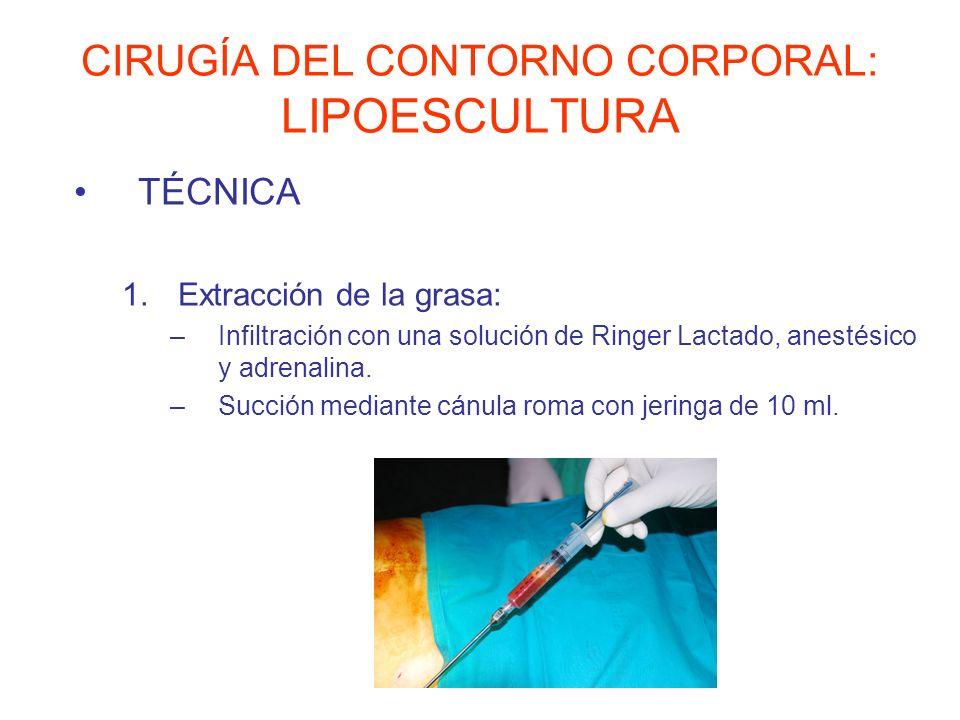 CIRUGÍA DEL CONTORNO CORPORAL: LIPOESCULTURA TÉCNICA 1.Extracción de la grasa: –Infiltración con una solución de Ringer Lactado, anestésico y adrenali