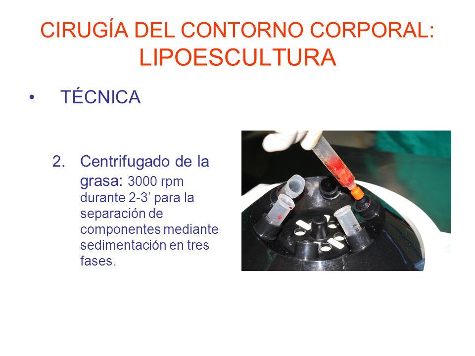 CIRUGÍA DEL CONTORNO CORPORAL: LIPOESCULTURA TÉCNICA 2.Centrifugado de la grasa: 3000 rpm durante 2-3 para la separación de componentes mediante sedim